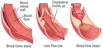 Cholesterol-Plaque-Blockage.jpg